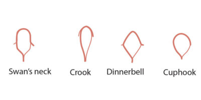 From left, Swan's Neck, Shepherd's Crook, Dinner Bell, Cup Hook—OK that this is repeated