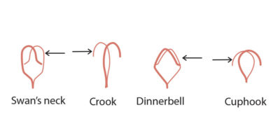 From left, Swan's Neck: Too much space in the center. Push hook forward (pushing from the rear and moving it forward). Shepherd's Crook: Too little space in the center. Push hook back (pushing from the front beak and moving it back). Dinner Bell: Too much space in the center. Push hook forward. Cup Hook: Too little space in the center. Push hook back.]